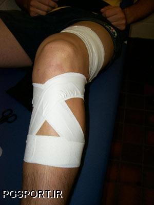 آشنائی با بانداژ و Taping درآسیب های ورزشی