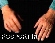 لرزش دست در اجرای حرکات
